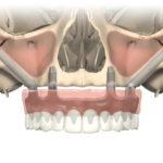 Zygoma-Implantate